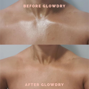 Glowdry Kit